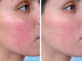 Rosacea And Facial Redness